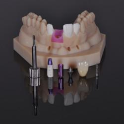 How Digital Dentistry Can Help Simplify The Digital Workflow