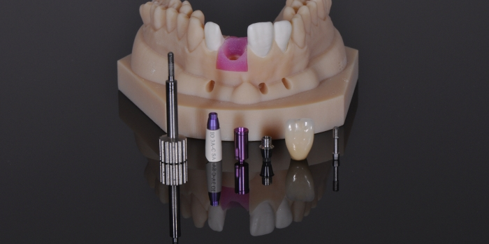 How Digital Dentistry Can Help Simplify The Digital Workflow
